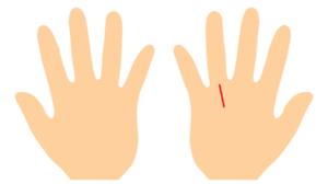 手相、太陽線が右手だけにある